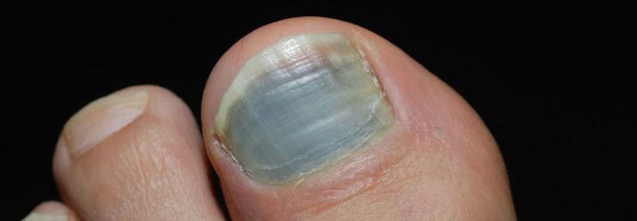 bruised-toenail-on-big-toe-1024x356.jpg