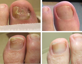 laser-toenail-treatment-1024x800.png
