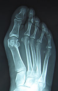 Bunion-x-ray-e1508527299194-656x1024.jpg