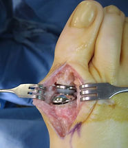 Bunion-metal-implant1-768x889.jpg