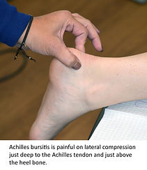 Posterior-heel-pain-bursa2-768x887.jpg