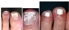 White-superficial-onychomycosis.png