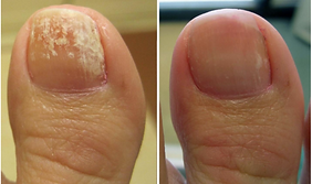 laser-toenail-treatment-3-768x455.png
