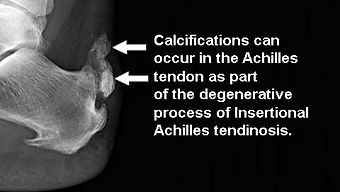 Calcifications-in-the-Achilles1.jpg