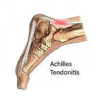 Posterior-heel-pain-Achilles-tendonitis1