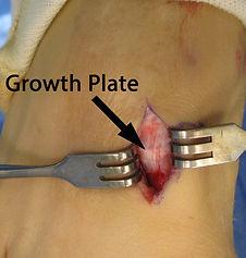 Growth-plate-768x807.jpg