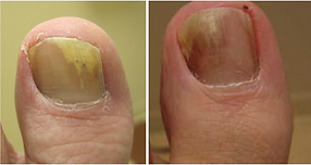 distal-subungal-onychomycosis-768x407.pn