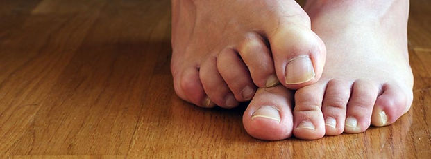 athletes-foot-1024x379.jpg