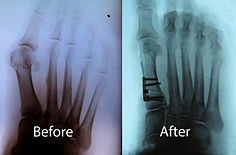 Bunion-before-and-afterXray-1024x672.jpg