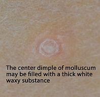 Moluscum-close-up-768x746.jpg
