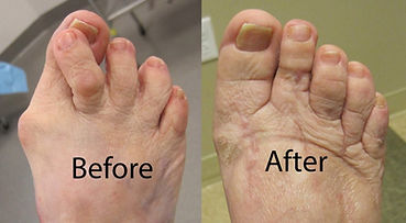 Bunion-before-and-after4-1024x563.jpg