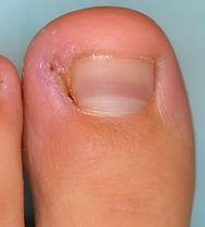 Ingrown-toenail6-768x849.jpg