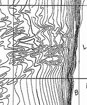 Malloy Hurley 1970 detail.jpg