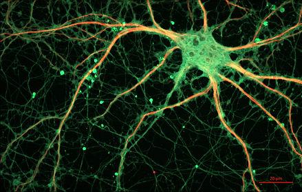 Hippocampal_Neuron.jpg