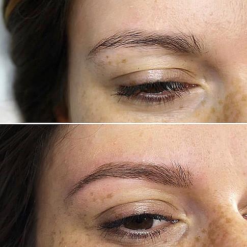 Micropigmentation sourcil