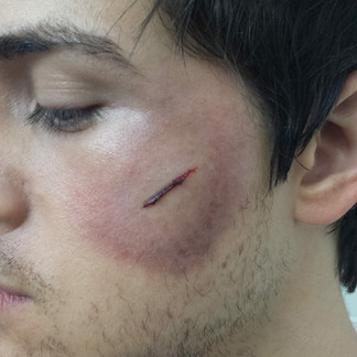 special effects scars.jpg