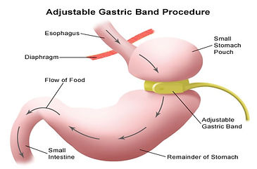 gastric band pic.JPG