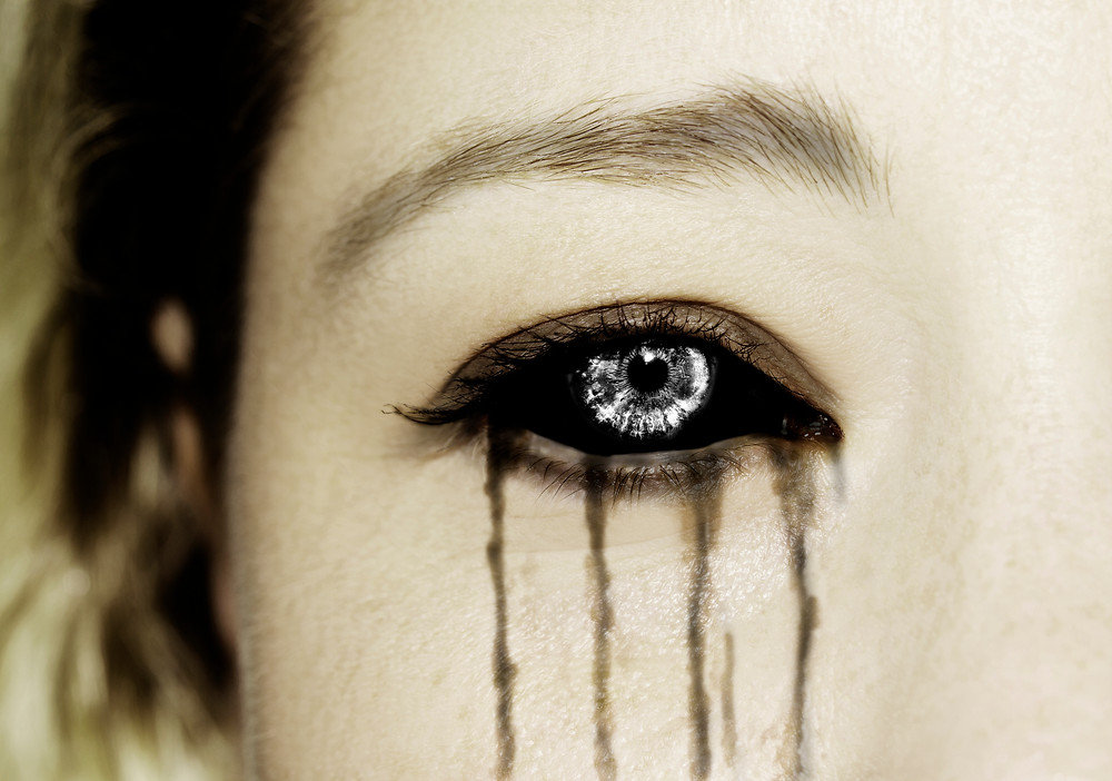 Girl with black sclera and grey pupil crying black tears