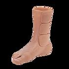 partial prosthesis