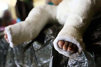 sudan_children_disability_prothetic_trea
