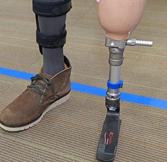 Below Knee Prosthesis.jpg