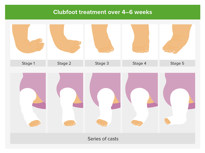 Management-of-clubfoot-1200x900.png