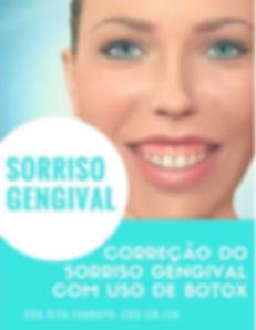 Tratamento Sorriso Gengival