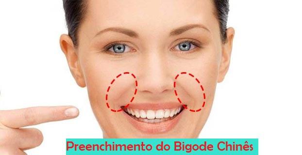 Preenchimento do bigode chines em sorocaba