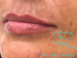 Preenchimento Labial. Você gostaria de ter lábios maiores?? Saiba como aumentar seu lábios!?