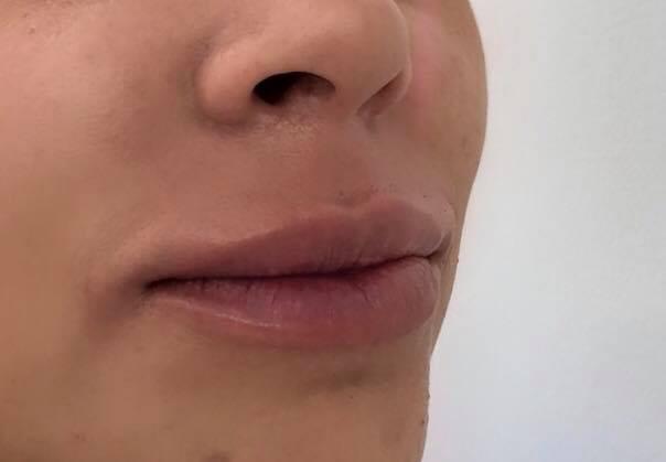 preenchimento labial em sorocaba