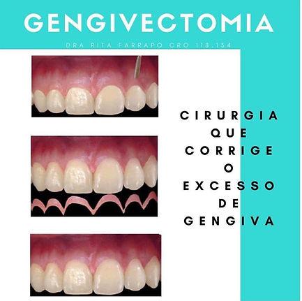 Gengivectomia Plastica de Gengiva