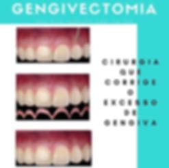 Gengivectomia gengivoplastia plastica gengival
