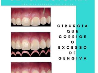 Estética do Sorriso: Limpeza Dental, Clareamento Dental, Sorriso Gengival e Gengivectomia ou Gengivo