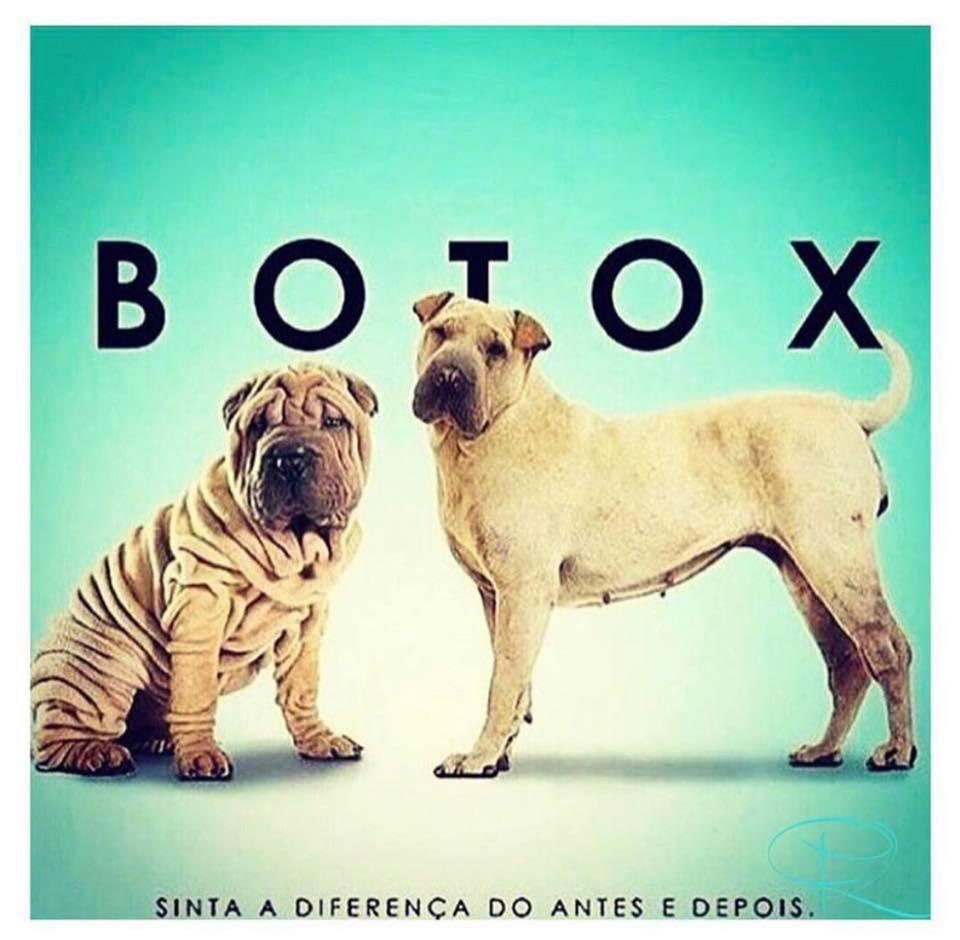 Botox em Sorocaba