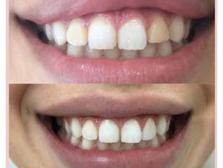 Gengivectomia, Clareamento Dental, Lente de Contato em 1 dente.
