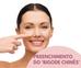 Como acabar com o Bigode chinês, o que é bigode chinês, quanto custa o preenchimento do Bigode chinê
