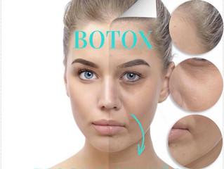 Botox e Preenchimento do Bigode Chinês em Sorocaba