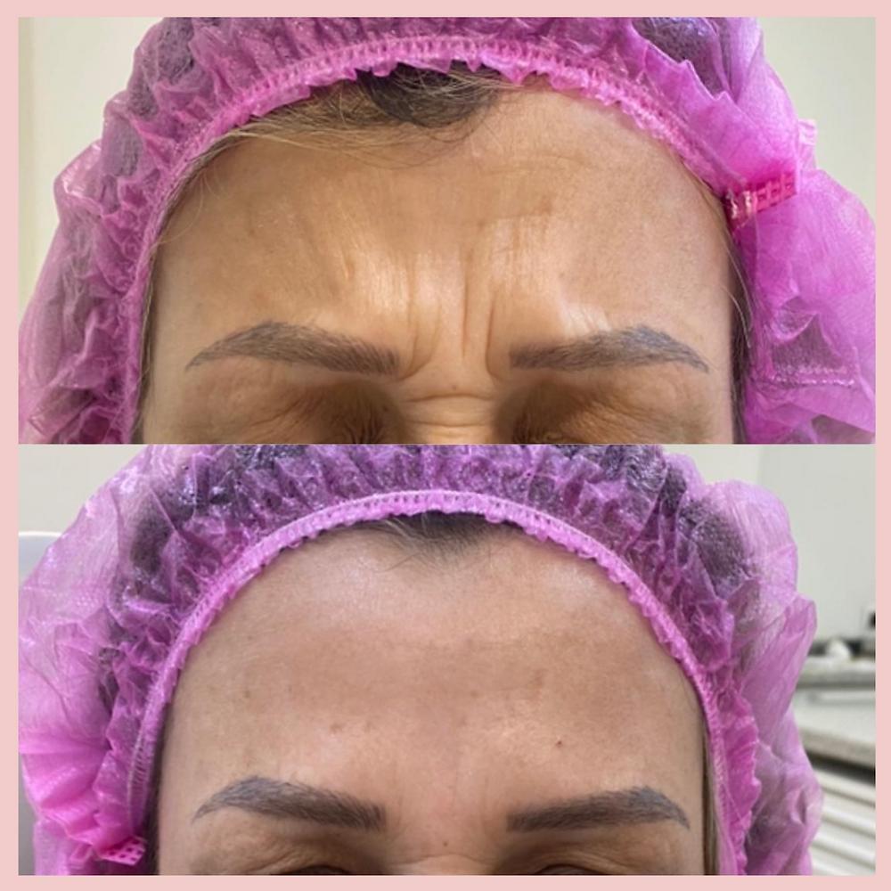 Aplicação de Botox ® em Sorocaba - Clínica Especializada - Dra Rita Saraiva