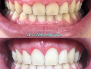 Gengivectomia, Gengivoplastia ou Plástica Gegival - Como aumentar os dentes pequenos?