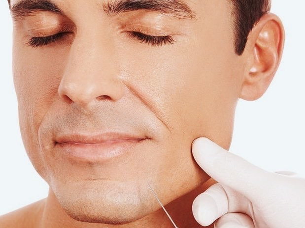 preenchimento do bigode chines