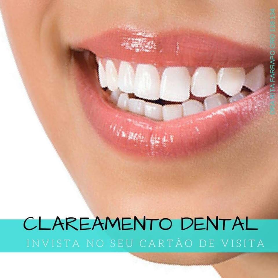 clareamento dental em sorocaba