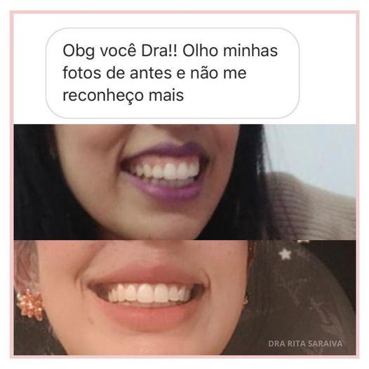 #sorrisogengivalsorocaba