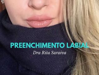 Preenchimento Labial, Como aumentar sua boca de maneira sútil??