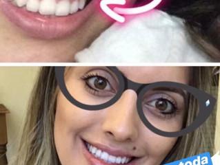 Gengivectomia Sorocaba, Gengivoplastia Sorocaba ou Plástica Gengival Sorocaba. Como aumentar o dente