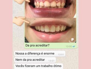 Gengivectomia Sorocaba, Gengivoplastia Sorocaba, Plastica gengival Sorocaba