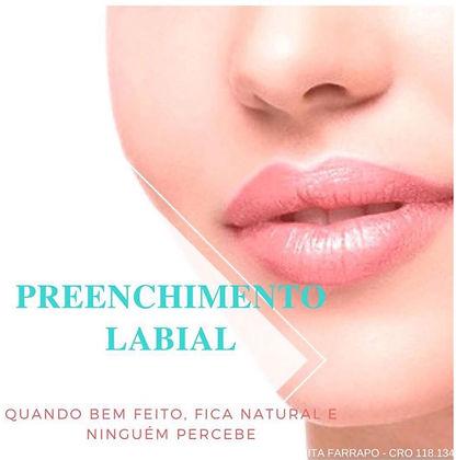 Escultura Labial aumento de lábios