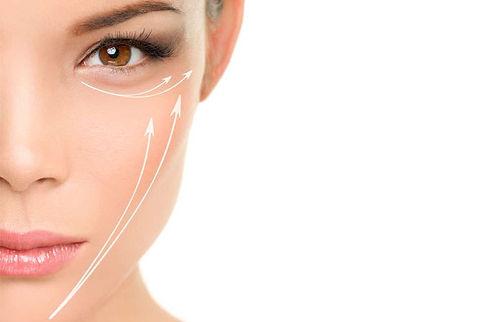 liquidfacelift_surgery-1000x658-1000x658