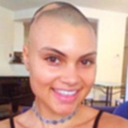 Bald-Woman-Alopecia-Inspiring-Instagram.