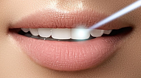 professional_teeth_whitening_edited_edit