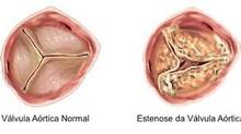 Os 4 tipos de estenose aórtica com área valvar <1cm2